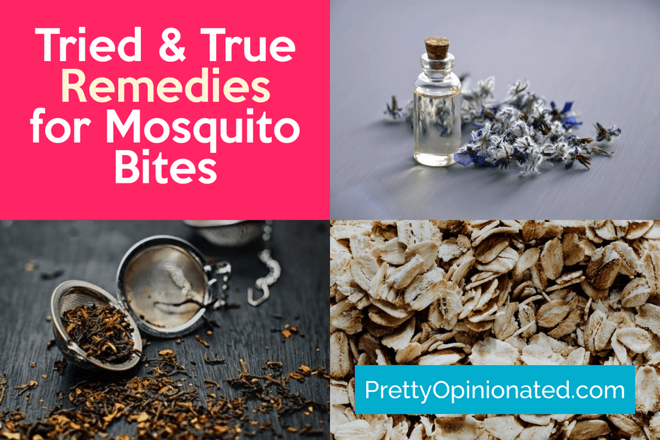 10 Tried & True Home Remedies for Mosquito Bites