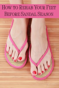 """Sandal season may seem far off, but if you have """"problem feet"""" NOW is the time to start rehabbing them! Check out my foot rehab routine for getting dry, cracked feet back into shape!"""