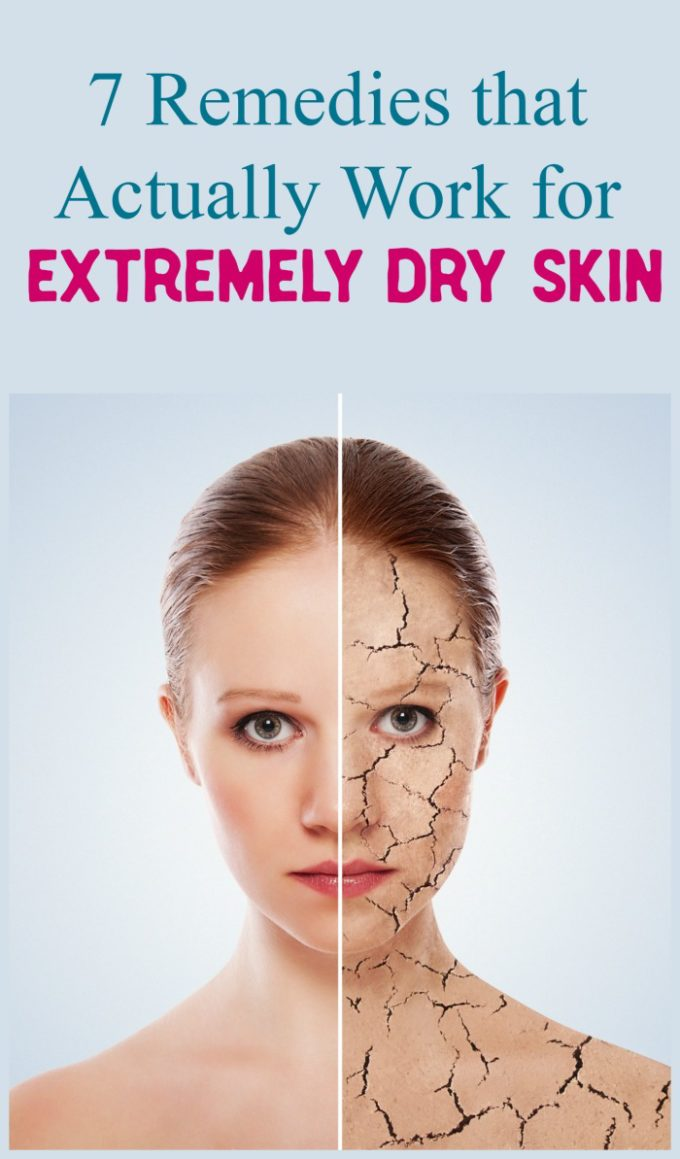 Dealing with extremely dry skin? Check out tried & true remedies of out what worked best, what kind of worked & what didn't work at all.