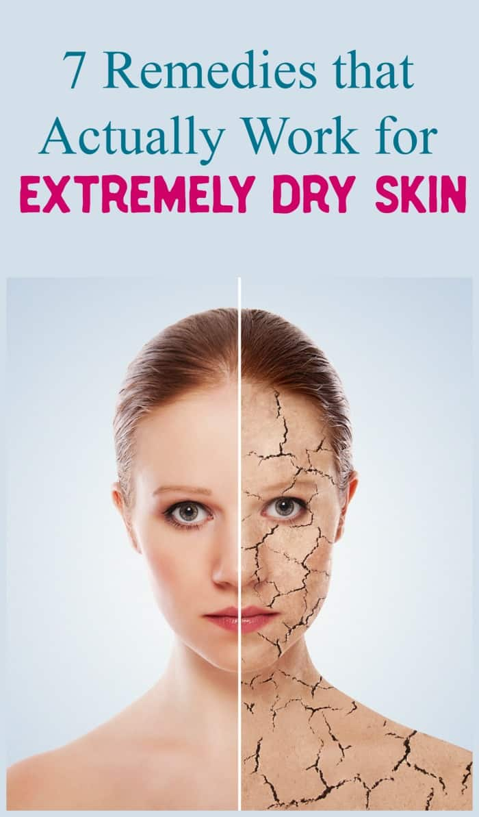 Dealing with extremely dry skin? Check out tried & true remedies of out what worked best, what kind of worked &  what didn\'t work at all.
