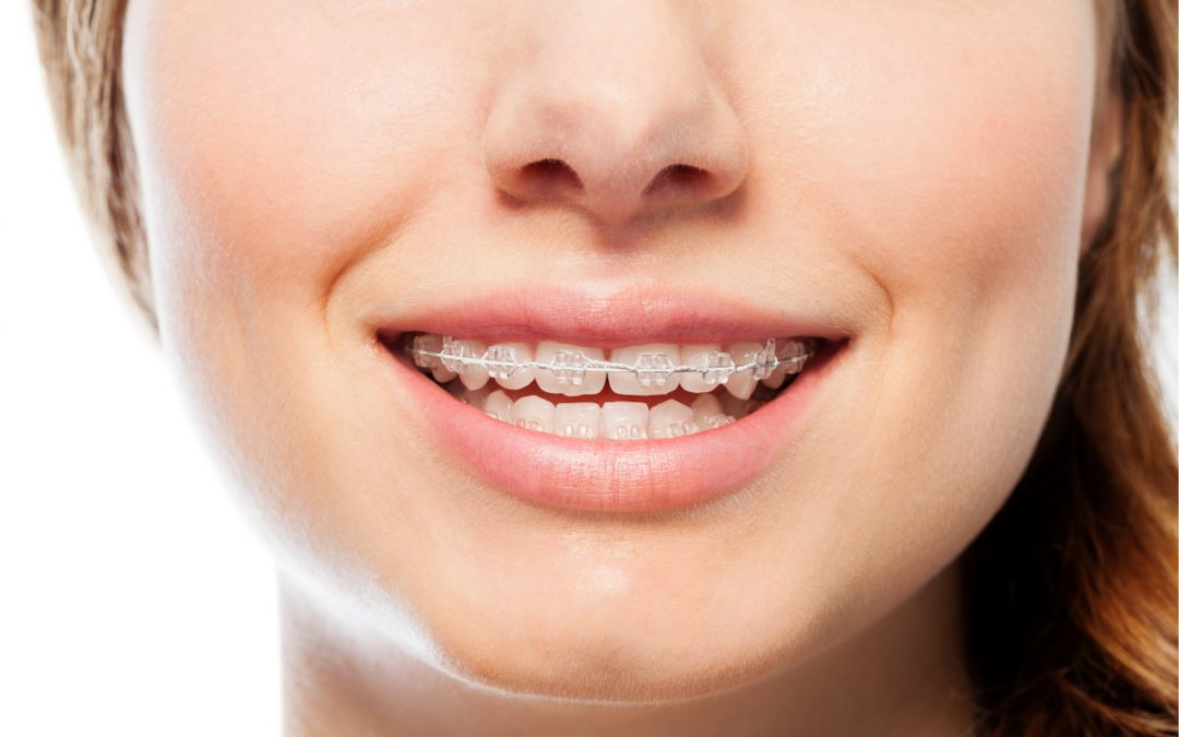 Clear Braces: Everything You Need to Know