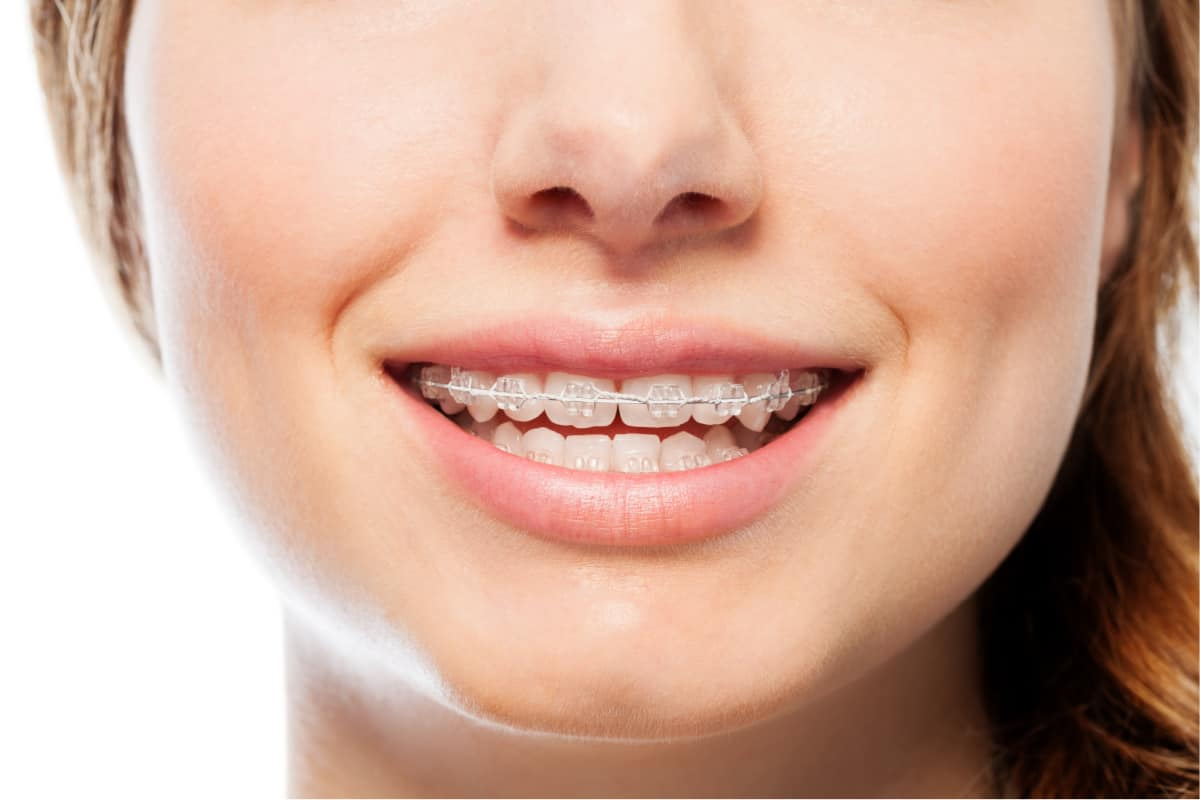If you're considering clear braces, read on for everything you need to know.