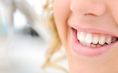 Why Should You Consider Invisalign?